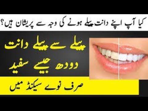 Daant Safaid Aur Chamakdar How To Whiten Teeth Teeth Whitening