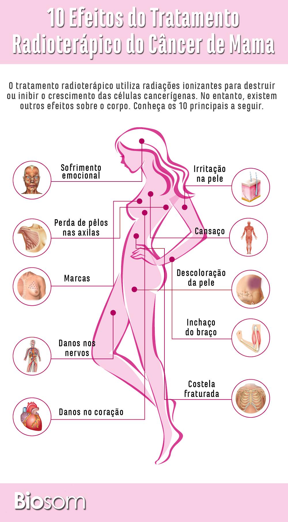 Entenda Mais Sobre Tratamentos De Câncer De Mama Clicando Na Imagem