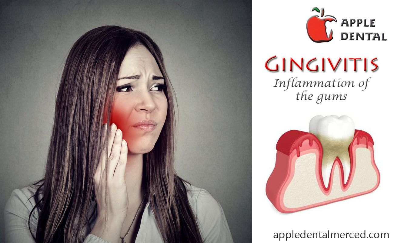 Gingivitis is due to the shortterm effects of plaque