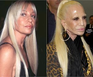 21 Celebrities Who Ruined Their Looks With Plastic Surgery