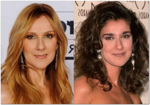 Celine Dion Plastic Surgery Photos Before After Celine Dion Songs Age