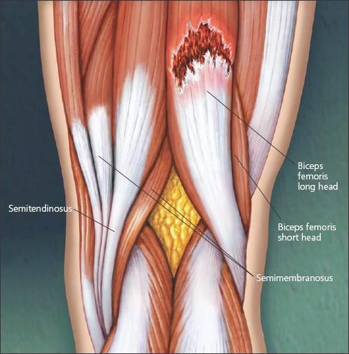 Contractura muscular biceps femoral