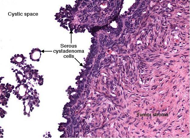 Pin By Great Wolf On Serous Papillary Ovarian Carcinoma Ovaries Uterus Ovarian