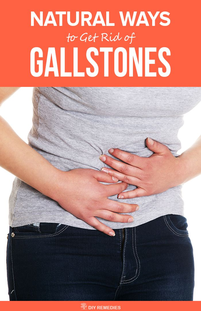 Natural Ways To Get Rid Of Gallbladder Stones