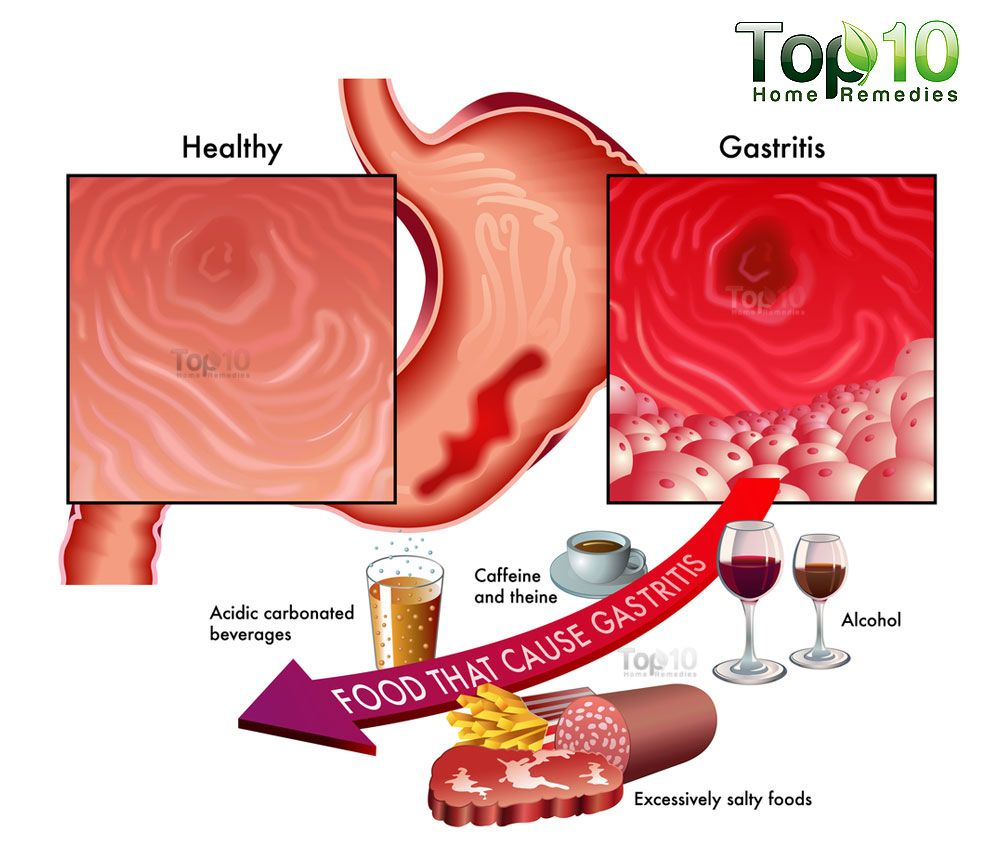 Home Remedies For Gastritis Top 10 Home Remedies Remedies For Gastritis Home Remedies For Gastritis Stomach Remedies