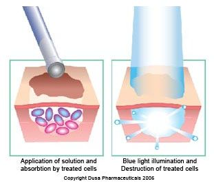 COM: BLUE LIGHT TREATMENT FOR SKIN CANCER   Blue Light Therapy Can