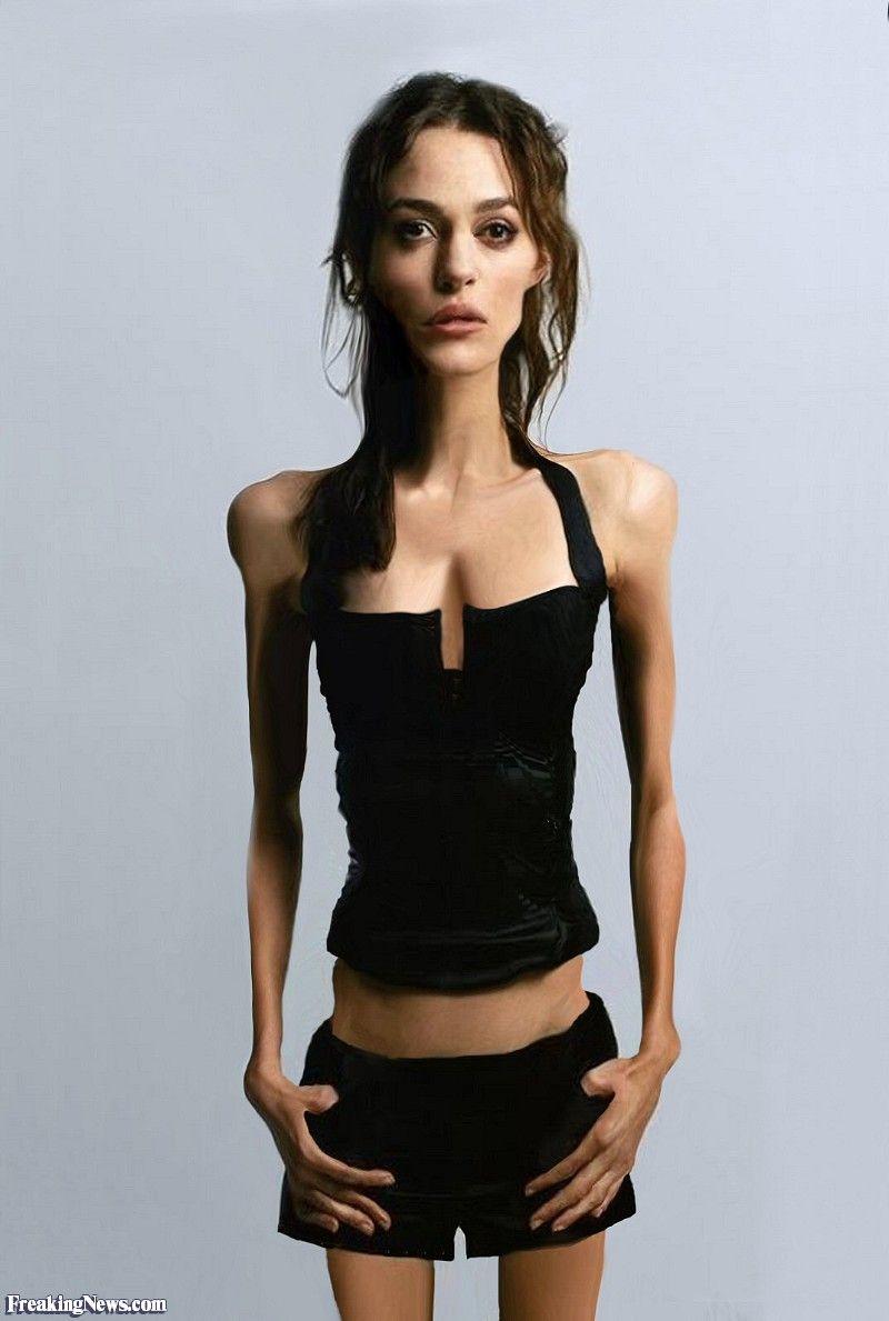 Keira Knightley anorexia debate