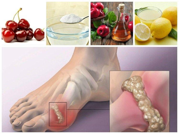 4 Fantasticos Remedios Para Disolver el Acido Urico