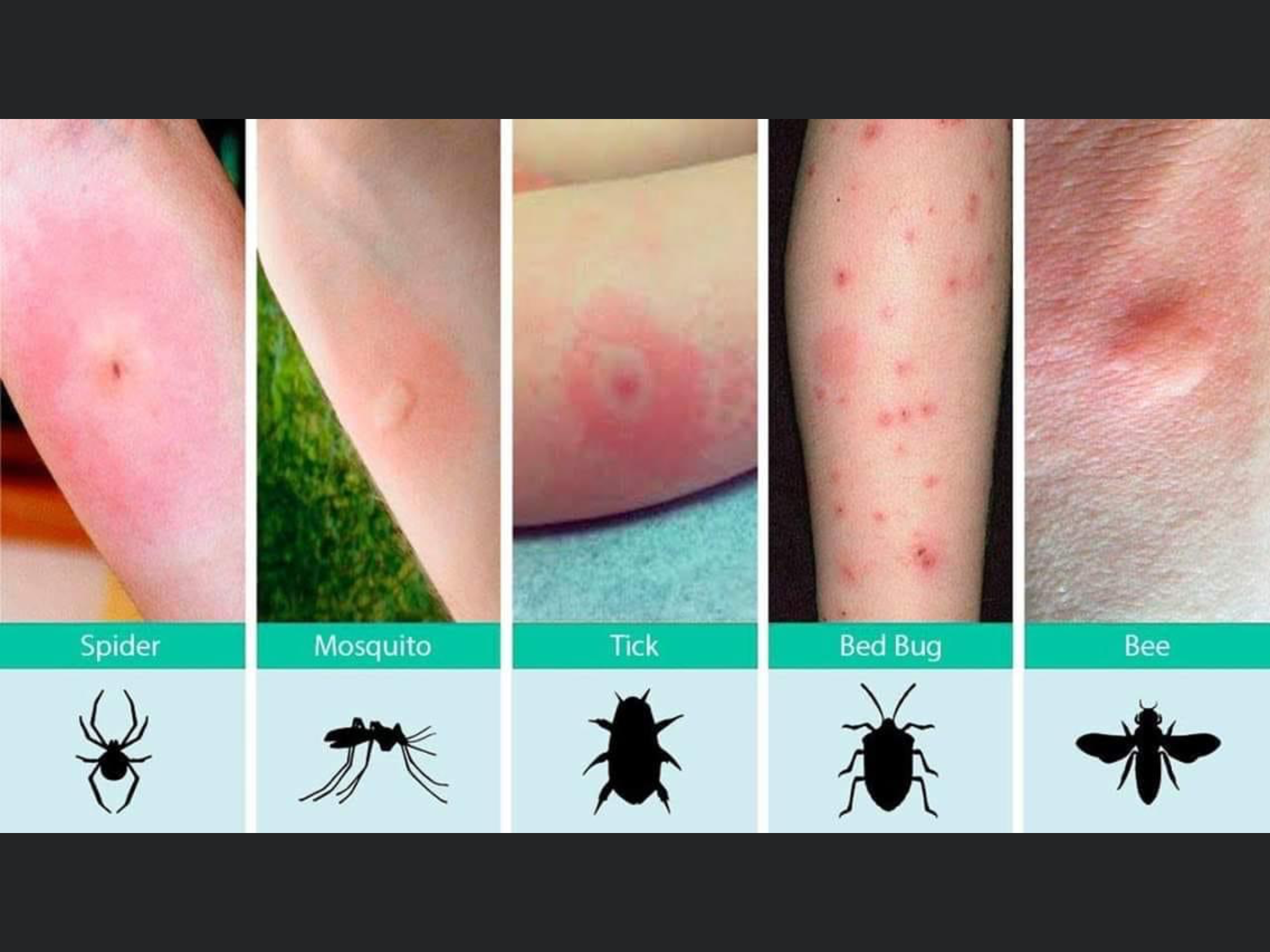 Pin by Jane Ritter on Tips in 2020 Bed bug bites, Bug