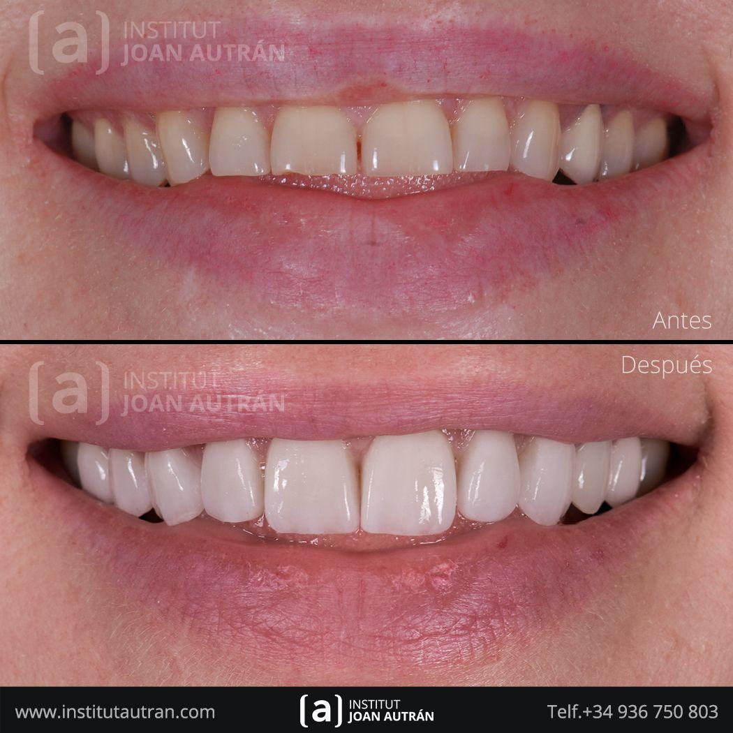 Carillas Sin Tallado Top Smile Para Solucionar Un Caso De Dientes Desgastados Por Bruxismo La Paciente Estetica Dental Dientes Desgastados Carillas Dentales