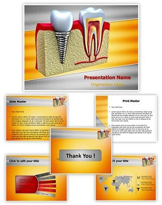 This Dental Implant Teeth Powerpoint Template Is Affordable