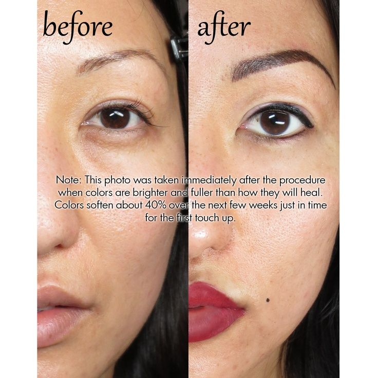 Permanent makeup before after come to skinthetics laser