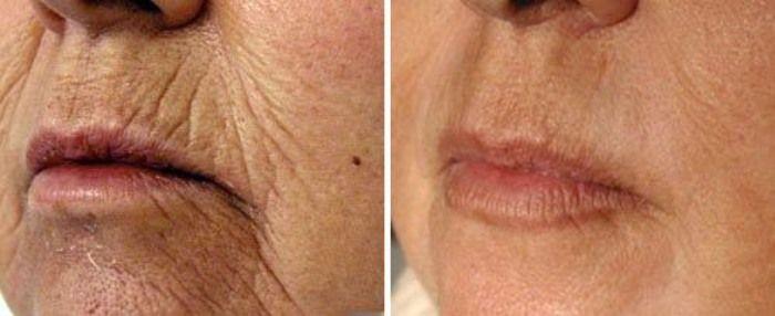 Smoker's Lines / Perioral Line Filler - Derma Models | Laser wrinkle  treatment, Skin resurfacing treatment, Laser skin treatment