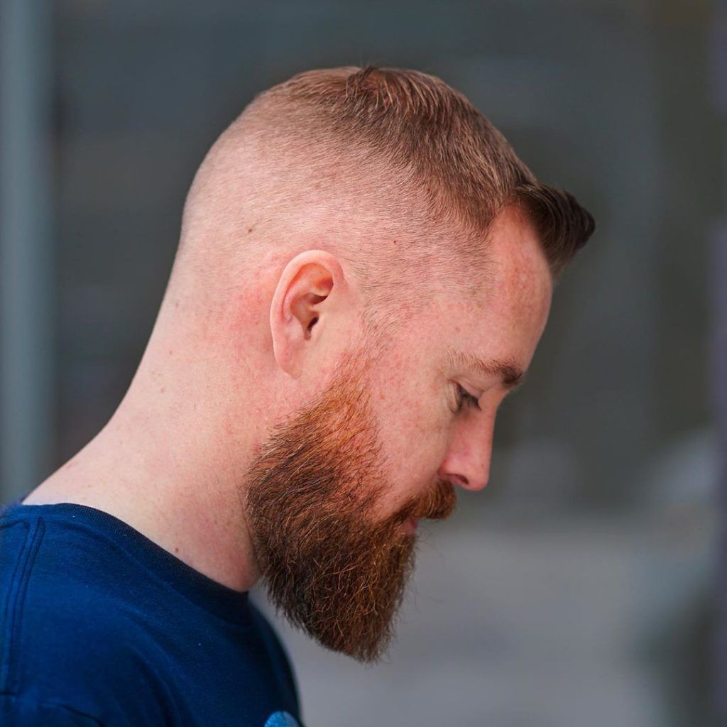 15+ How to cope with male pattern baldness ideas in 2021