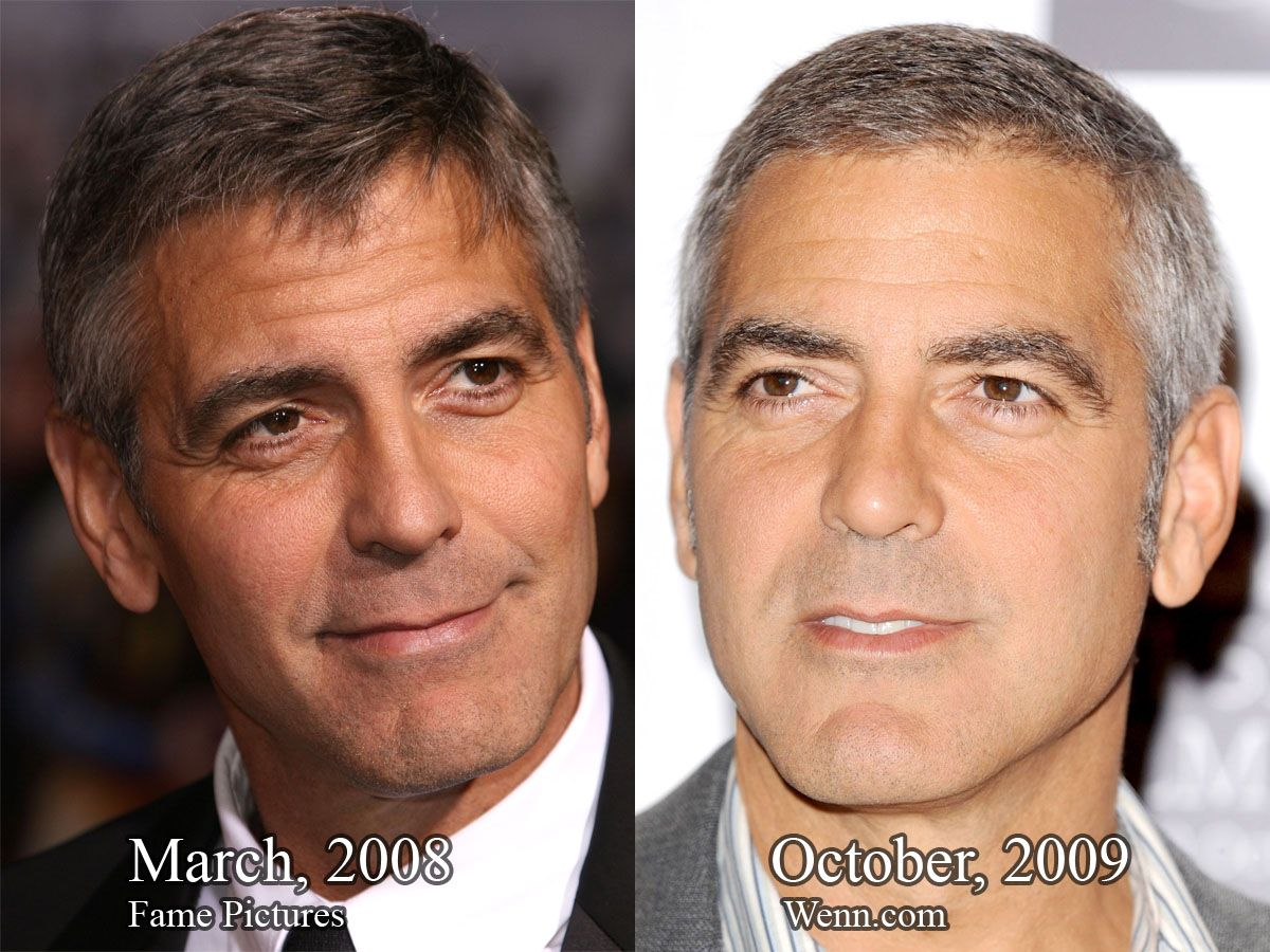 George Clooney Plastic Surgery Before After Always
