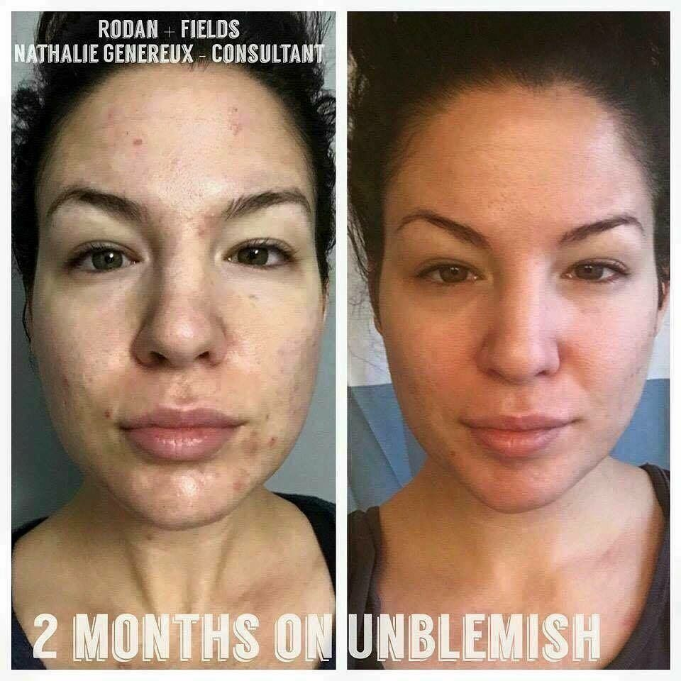 Home microdermabrasion results pictures.