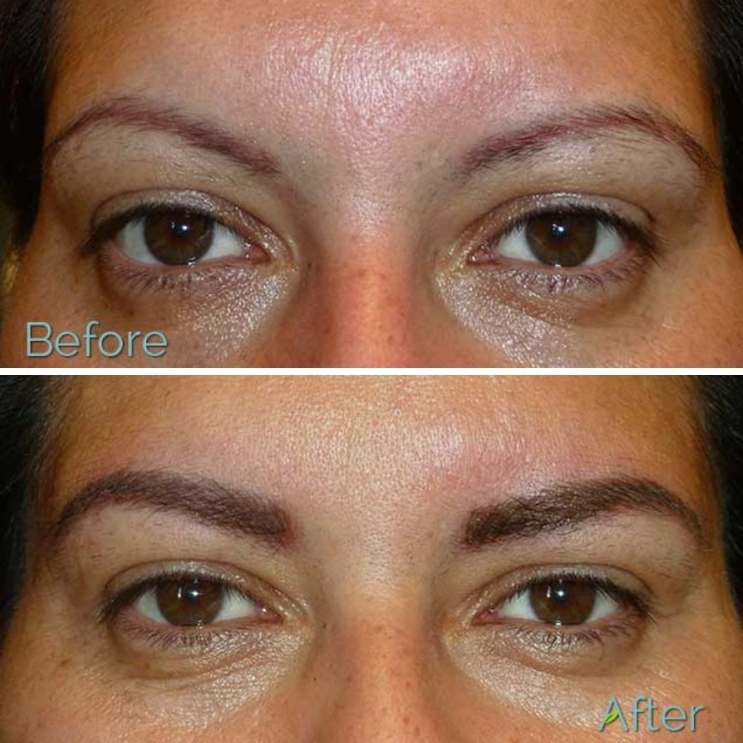 If your previous eyebrow tattoo no longer suits your face