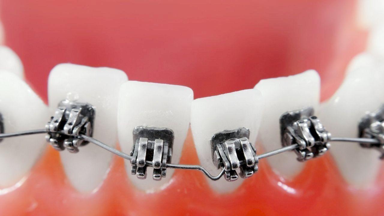معلومات عن تقويم الأسنان Orthodontics Dental Braces Dental Implants