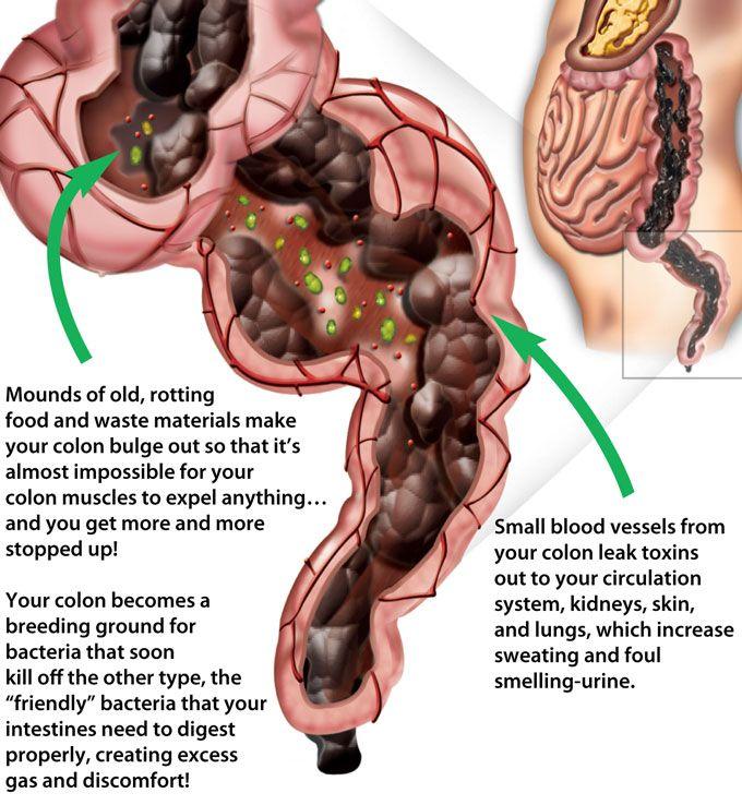 Hidden Constipation Syndrome | Medical Information | Detox