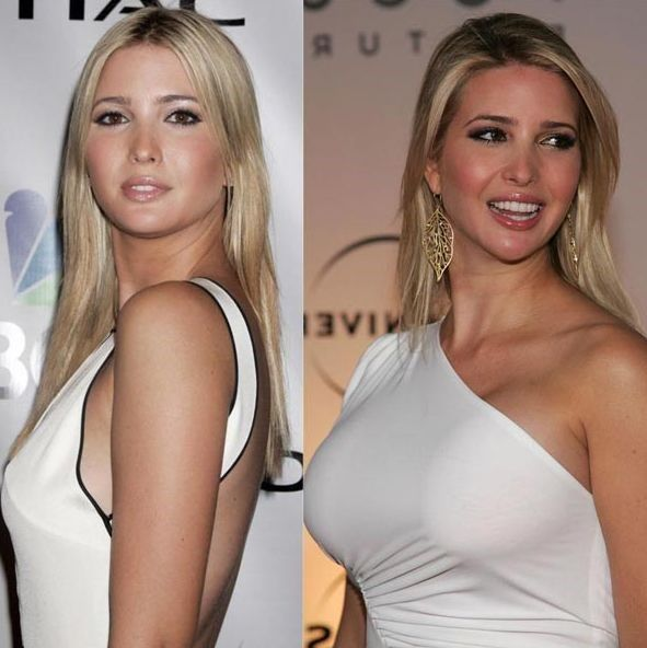 Small breast implants before and after