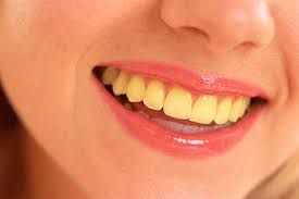 Lpkiukiu Com Memiliki Gigi Yang Indah Putih Dan Bersih Merupakan