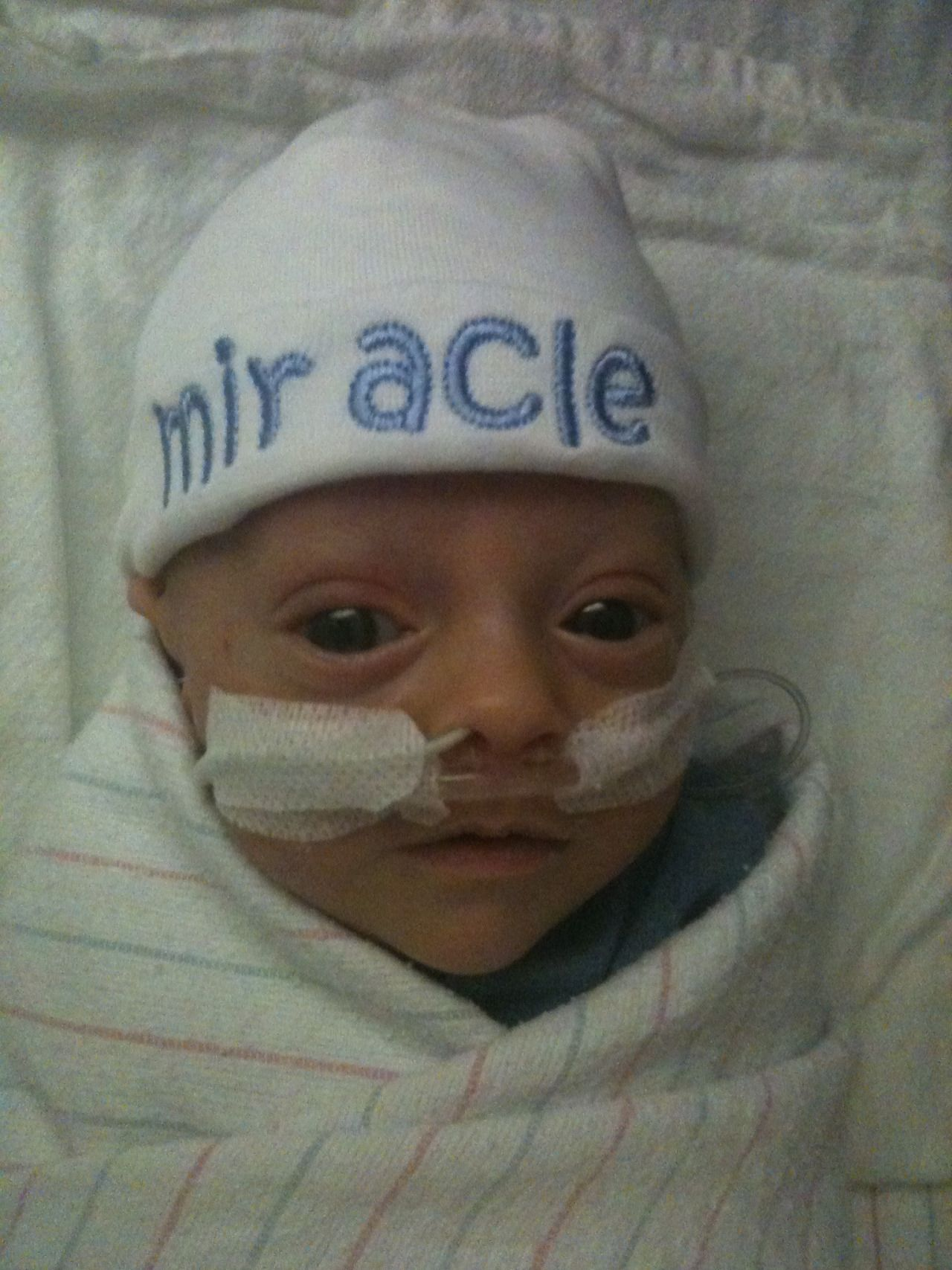 Baby Born At 25 Weeks: How One 'Miracle' Baby Beat The Odds After Being Born At