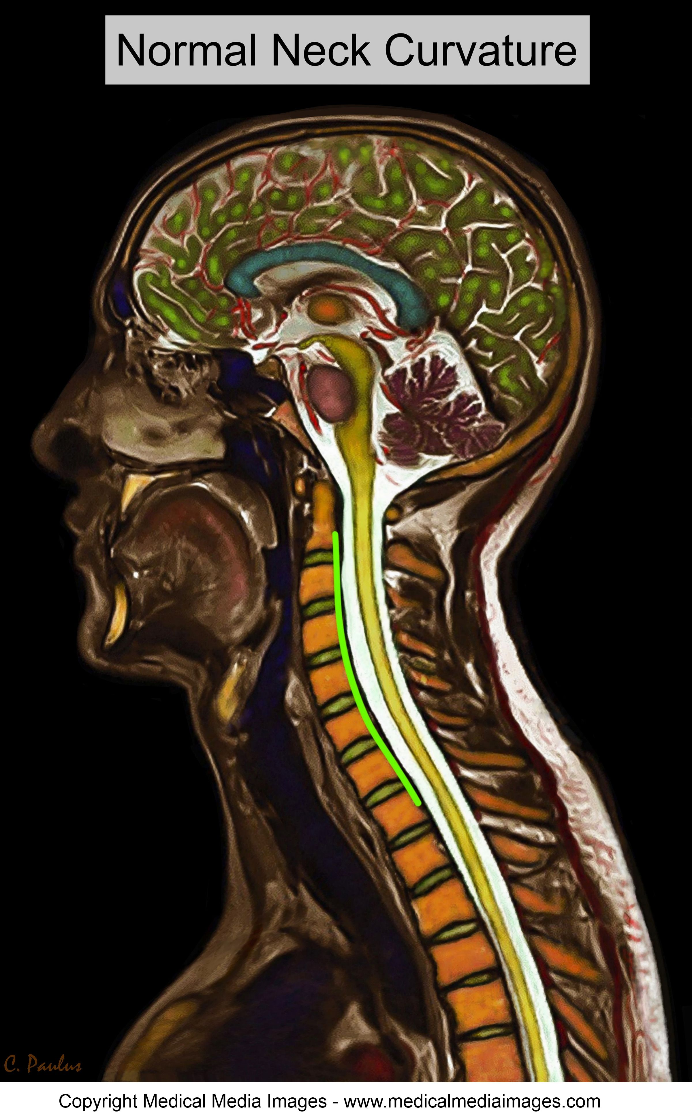 Chiropractic Color MRI showing a normal neck curvature. Ideal for ...