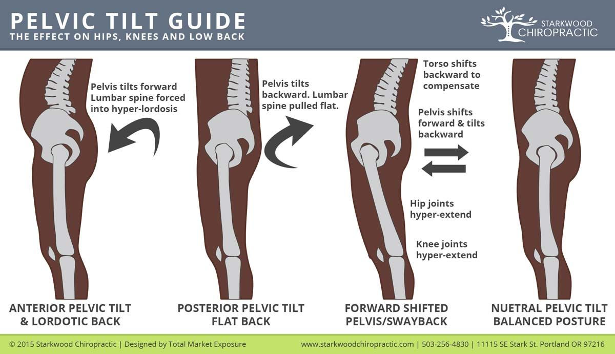 Pelvic-Tilt | Exercise | Pinterest | Tilt, Anatomy and Therapy