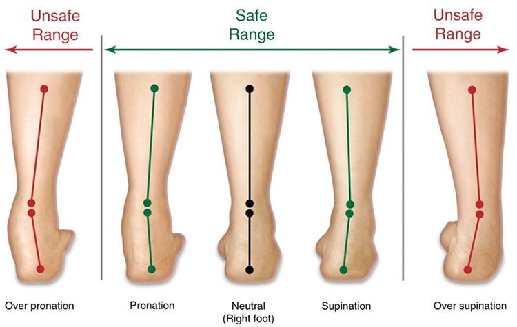 excessive subtalar pronation and supination: caused by forefoot and rear  foot varus.