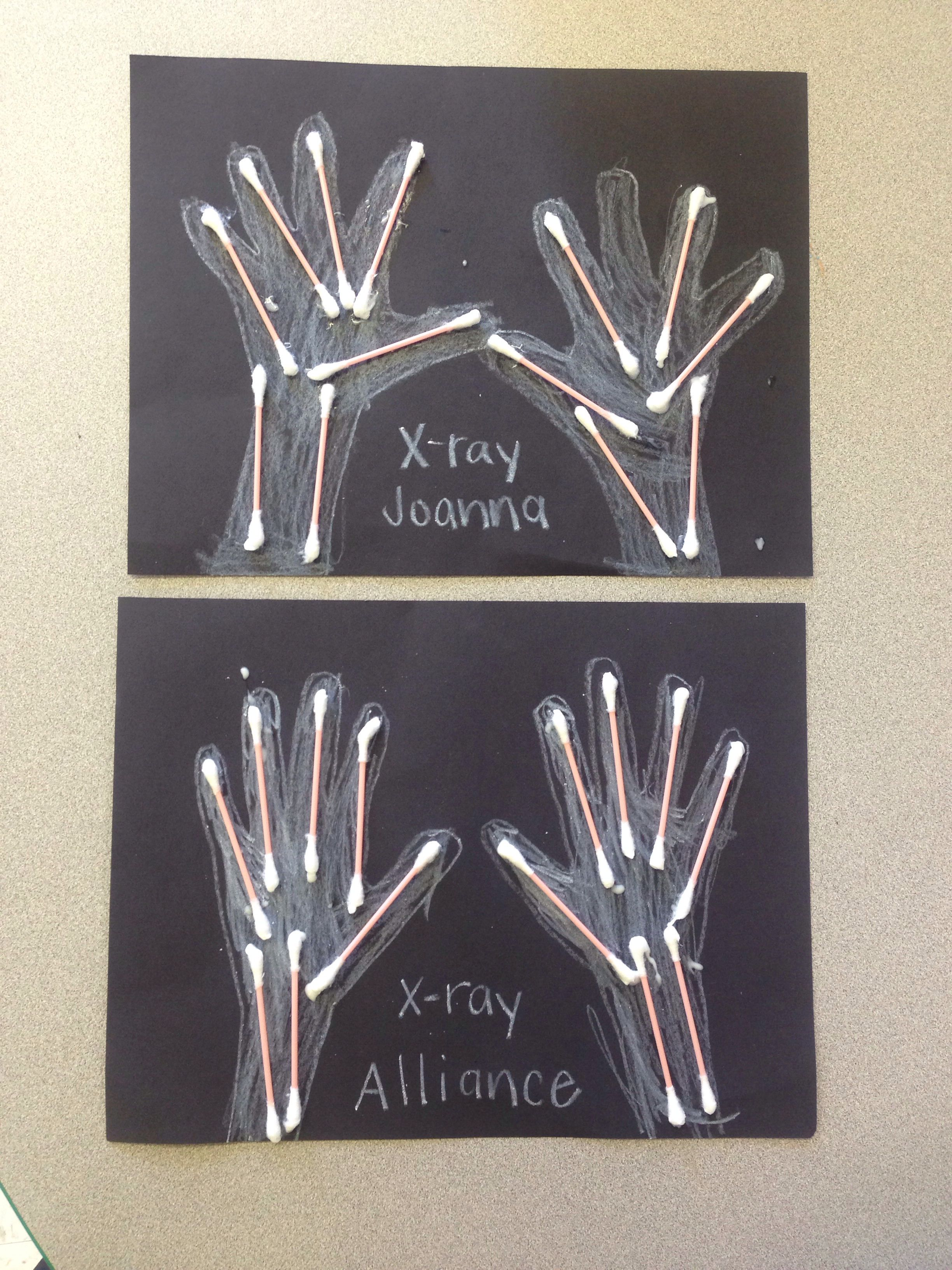 Xray hands for letter X Lettering, X ray, Alliance