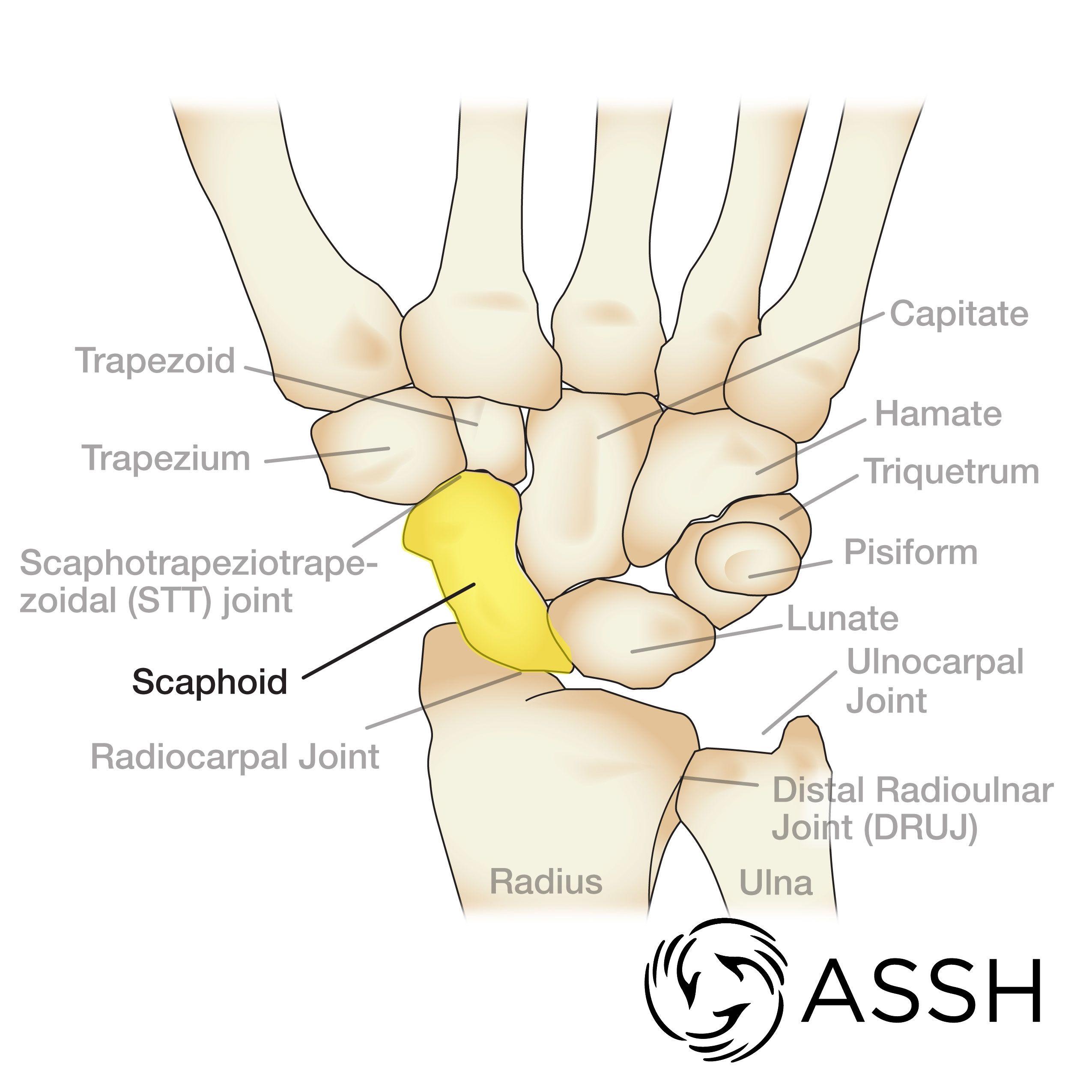 Anatomy Wrist Bones Anatomy 101: Wrist Bones The Handcare Blog ...