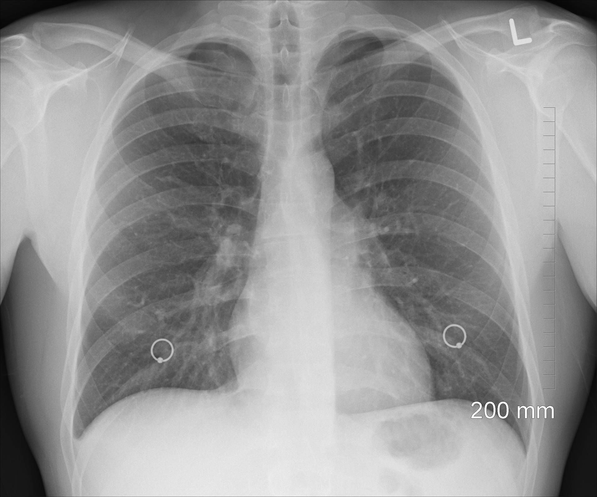 59+ Asbestos x ray images