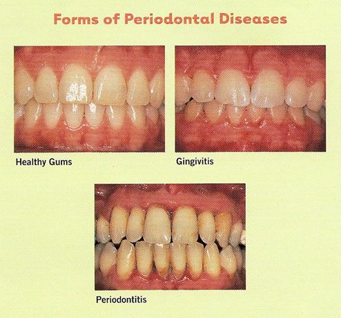 periodontic notes for dental hygiene Retaining your teeth is directly dependent on proper periodontal care and   important note: your gums can look quite normal and yet deep pockets of.