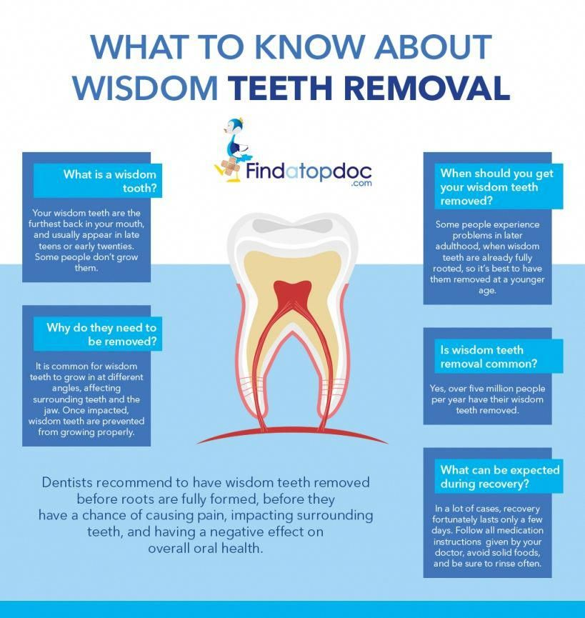 Dangerous Wisdom Teeth Extraction toothcare