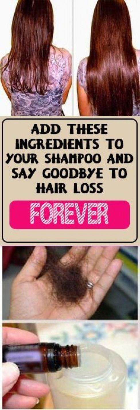 Just Add These Two Ingredients To Your Shampoo And Say Goodbye To Hair Loss Forever #fitness #beauty...