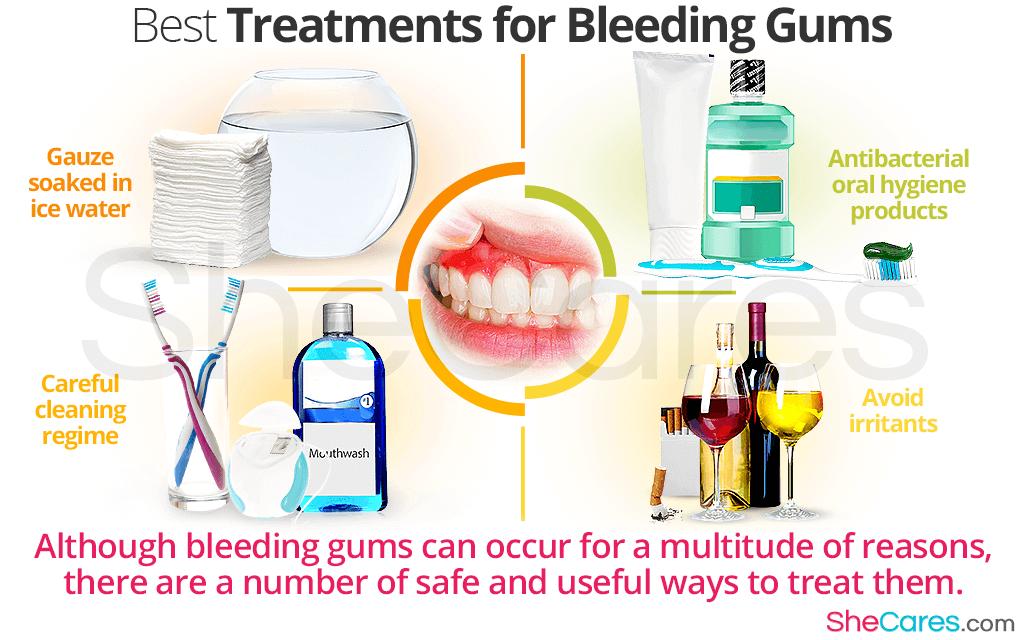 Best Treatments for Bleeding Gums Hormone imbalance