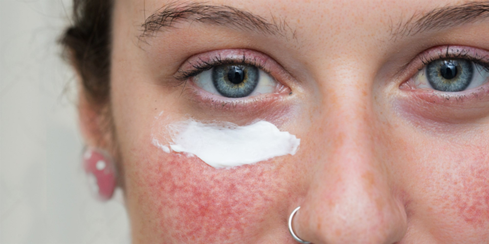 Dealing with rosacea flare-ups? These dermatologist-approved solutions can help