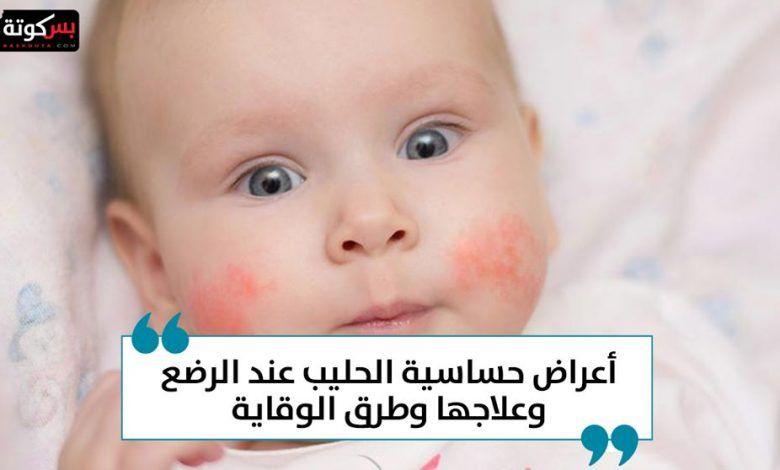 أعراض حساسية الحليب عند الرضع وعلاجها وطرق الوقاية Baby Face Face Baby