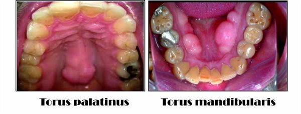 Dentaltown - What steps you take for Immediate Denture with Torus