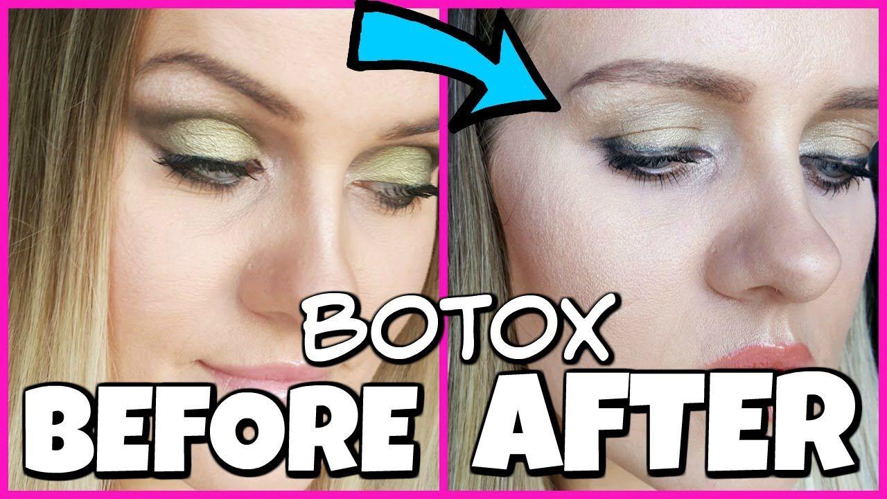 Botox Gone Wrong My Story Botox Botox Brow Lift Anti Aging Tips