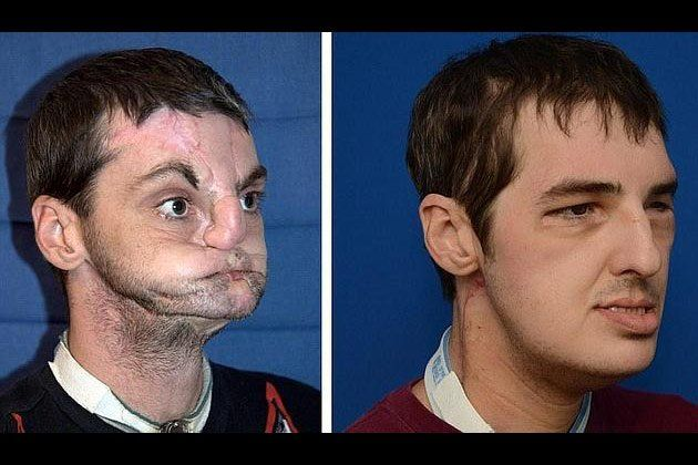 Before and after face transplant