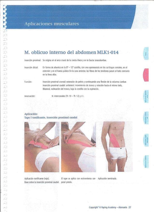 M. oblicuo interno del abdomen MLK1-014 insertion proximal; Se ...