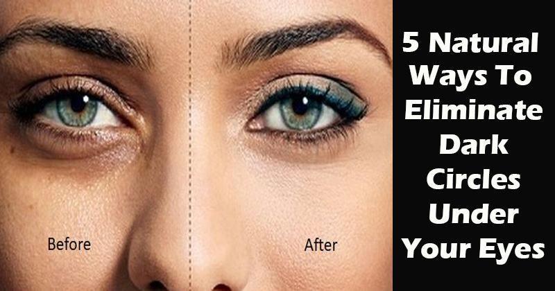 5 Natural Ways to Get Rid of Dark Circles Under Your Eyes ...