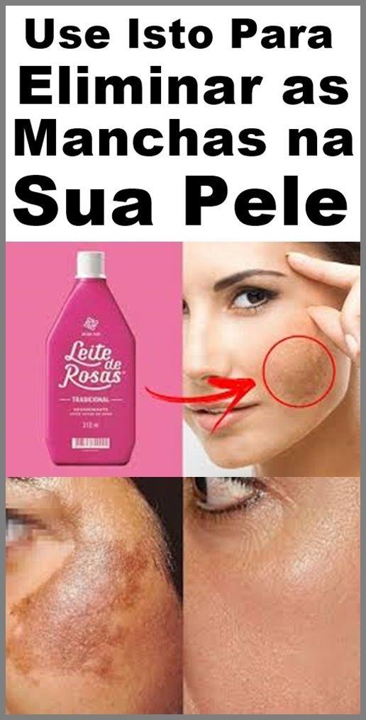 Leite De Rosas E Bicarbonato Para Remover Manchas Na Pele