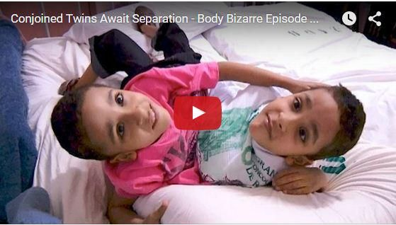 Twin Brother Connected At The Middile And Sharing Only Three Legs   Click Here http://www.cambodianhappy.com/2015/09/16/twin-brother-connected-at-the-middle-and-sharing-only-three-legs/…