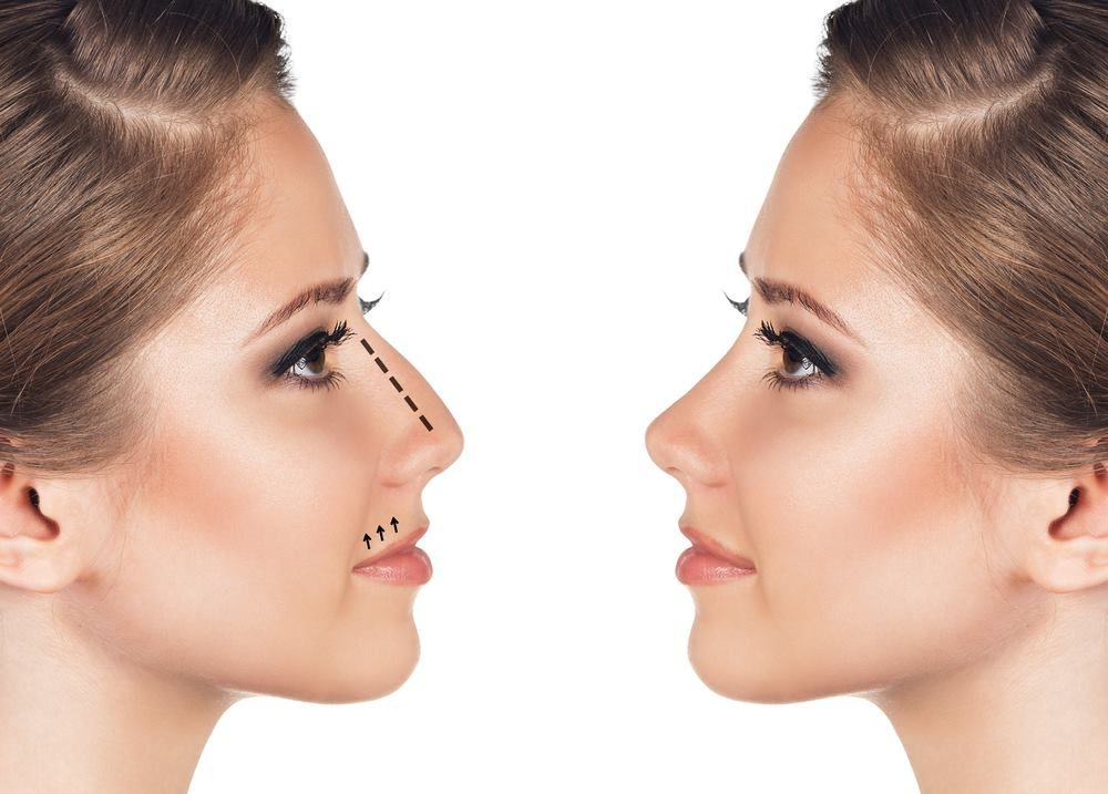 اذا كنتي تبحثين علي ان تكوني اكثر جمالا فإليكي عمليات تجميل الانف للحصول علي وجه أجمل واكثر تناسقا Rhinoplasty Nose Reshaping Nose Job