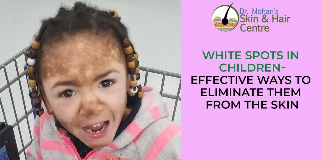 White Spots Children Eliminate Them From Skin Mohan Skin Care Centre Skin Problems Skin Disorders Skin