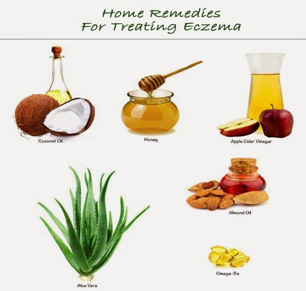 Eczema On The Skin Natural Remedies With Images Skin Natural