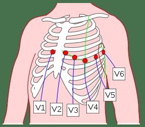 Electrodos Del Electrocardiograma Donde Colocarlos Cosas De Enfermeria Tecnico Auxiliar De Enfermeria Auxiliar De Enfermeria