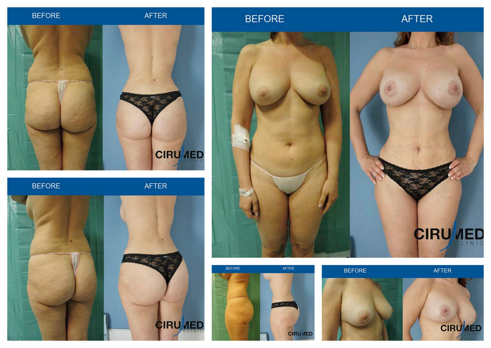 fat transfer breast surgery jpg 422x640